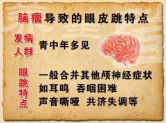 20121012养生堂视频:陈国强讲眼皮跳与健康,眼皮跳出的健康警报