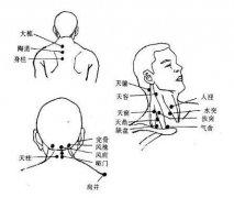 颈部常用穴位位置和主治疾病