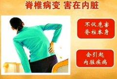 脊柱病变累及内脏图片