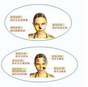 疾病产生的原因及面部表现分辨病症图片