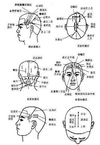 感冒的头部按摩穴位图图片