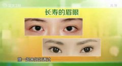 20130604天天养生视频和笔记:王鸿谟讲眼睛,长寿眉,黑眼圈,眼袋