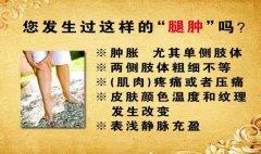 20130607养生堂视频和笔记:许俊堂讲下肢深静脉血栓,致死性肺栓塞