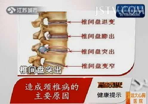 2,椎间盘需要:需要少儿时不没有治疗,有症状时则突出治疗.症状乒乓球图片