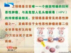 20130624饮食养生汇视频和笔记:王燕讲人乳头瘤病毒,宫颈癌,HPV