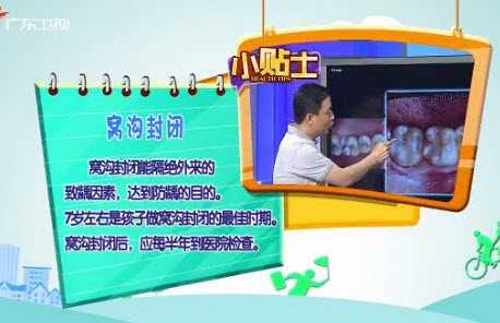 20130703健康有道视频和笔记:段建民讲护牙,牙刷,窝沟封闭,臼齿