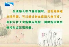 20130726饮食养生汇视频和笔记:程凯讲口腔溃疡,口疮,商阳穴