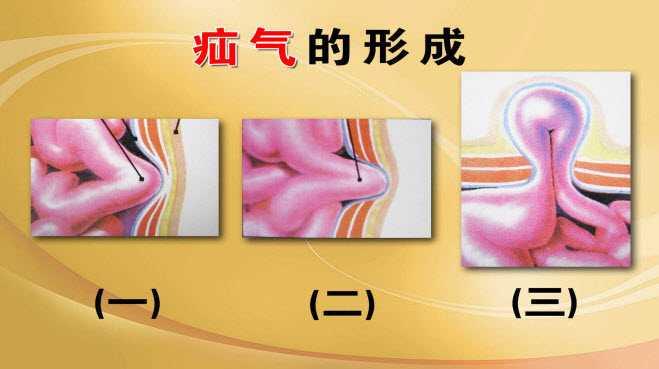 疝气腹腔结构图片