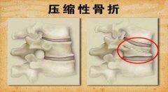 压缩性骨折图片