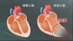 健康心脏和病变心脏对比图片
