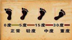 八字脚的程度图片