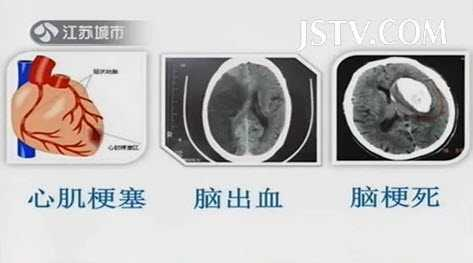动脉硬化的演变过程