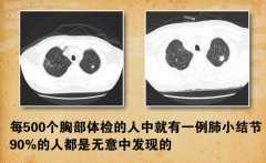 20140425养生堂视频和笔记:侯生才讲肺小结节,肺癌,呼吸道防护
