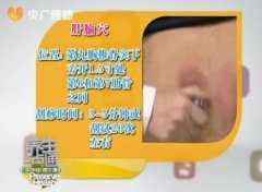 20140501养生一点通视频和笔记:王敬讲刮痧治疗乳腺增生,期门穴