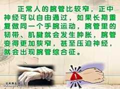20140529饮食养生汇视频和笔记:张黎讲腕管综合征,什锦烩豆腐