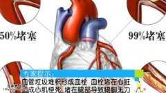 20130730健康生活视频和笔记:陈以言讲瓜蒌半夏薤白汤,动脉硬化
