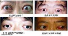 眼球突出是怎么回事,眼球形态的变化与健康自测