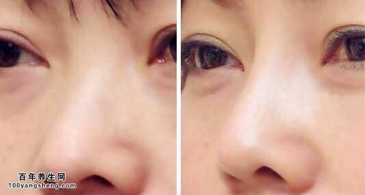鼻骨骨折后遗症_鼻翼煽动,鼻梁塌陷,鼻根青筋暴露是为什么?鼻子形态与健康 ...