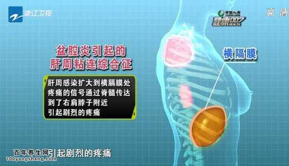道炎的原因有哪些_20140730健康007视频和笔记:王建六讲盆腔炎的原因,急性盆腔炎