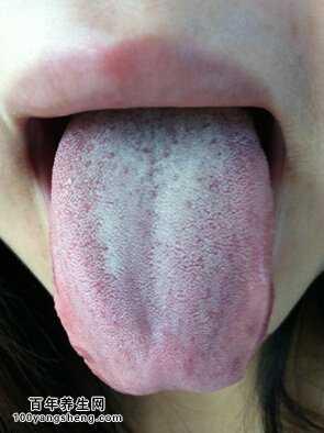 脾�的舌象