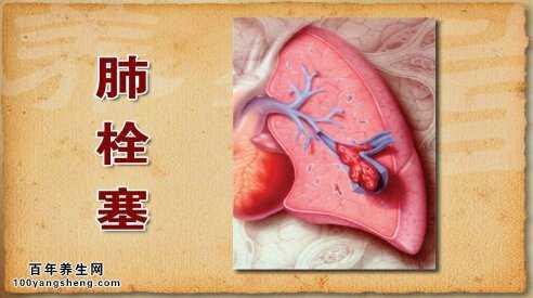 肺栓塞的示意图