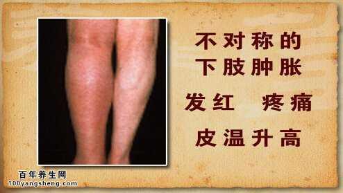 肺栓塞的腿部症状