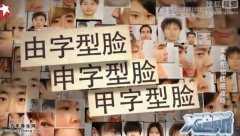 20141028X诊所视频和笔记:王鸿谟讲脸型分类,脸型有几种,耳褶心征