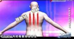 20141202X诊所视频和笔记:张鹤瑶讲脸上长斑的原因,护发方法