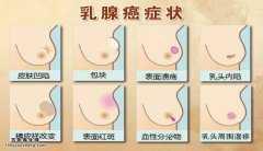 20150119养生堂视频和笔记:王翔,乳腺癌症状,乳腺癌早期症状图片