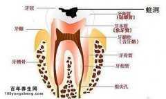 什么是牙髓炎?牙髓炎的治疗?