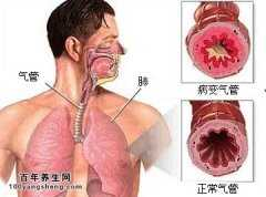 身体的哪些征兆在提示您有慢性支气管炎的风险