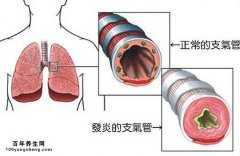 哪些征兆提示您有急性支气管炎