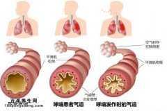 支气管哮喘的诊断标准是什么?