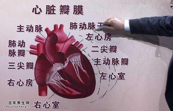20150409养生堂视频和笔记:周玉杰,心脏支架,心脏搭桥图片