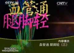 <b>20150625健康之路视频和笔记:杨宝钟,陈朝晖,静脉曲张怎么治疗</b>