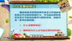20150703饮食养生汇视频和笔记:赵湜,糖尿病足,糖尿病的预防