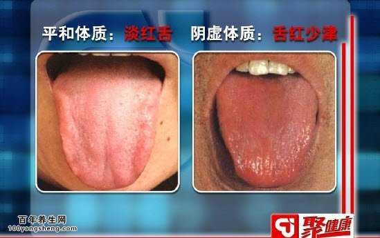 虚体质的表现,舌头发红