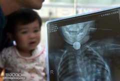 婴儿误吞电池身亡,宝宝不宜将电池当玩具
