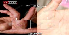 20160324我是大医生视频和笔记:崔培林,胃癌,砷疔,铅中毒(重播)