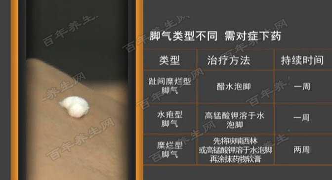 脚气类型不同治疗方法不同
