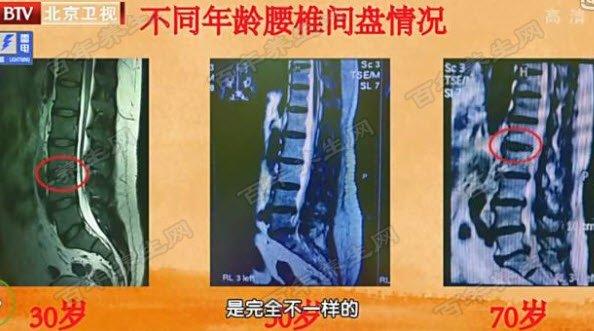 不同年龄阶段腰椎的状态