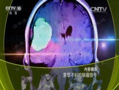 20160919健康之路视频和笔记:李世亭,脑瘤,视野缺损,复视,幻嗅