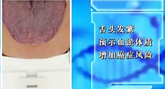 血瘀体质的舌像