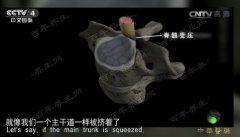 20161121中华医药视频和笔记:刘焰刚,吴浩,颈椎病,挑选枕头的窍门
