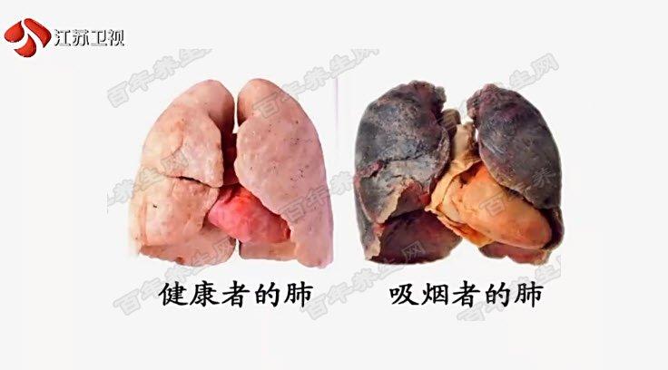 吸烟者的肺