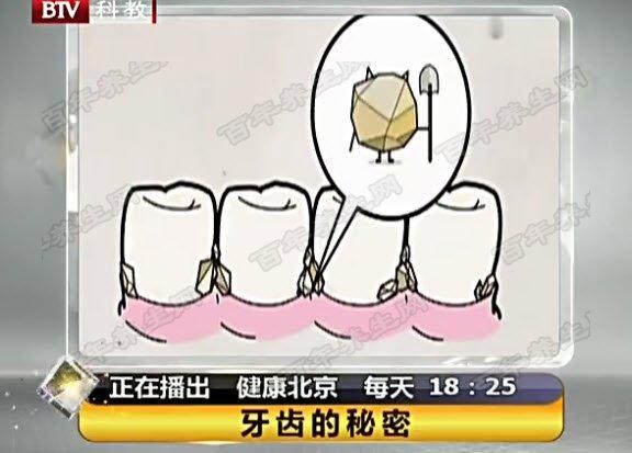 塞牙到底是不是牙周病造成的