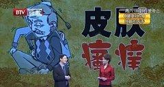 20170320健康北京视频和笔记:晋红中,皮肤瘙痒,荨麻疹,湿疹