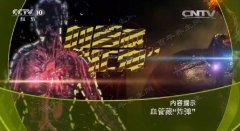 20170526齐乐娱乐视频和笔记:刘鹏,腹主动脉瘤,高血压,腹痛