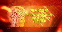 20170628养生堂视频和笔记:张东,张凯,曲辉,头疼,三叉神经痛