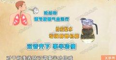 20170815X诊所视频和笔记:王健,秋燥,秋乏,咳嗽,便秘,蜂蜜梨水